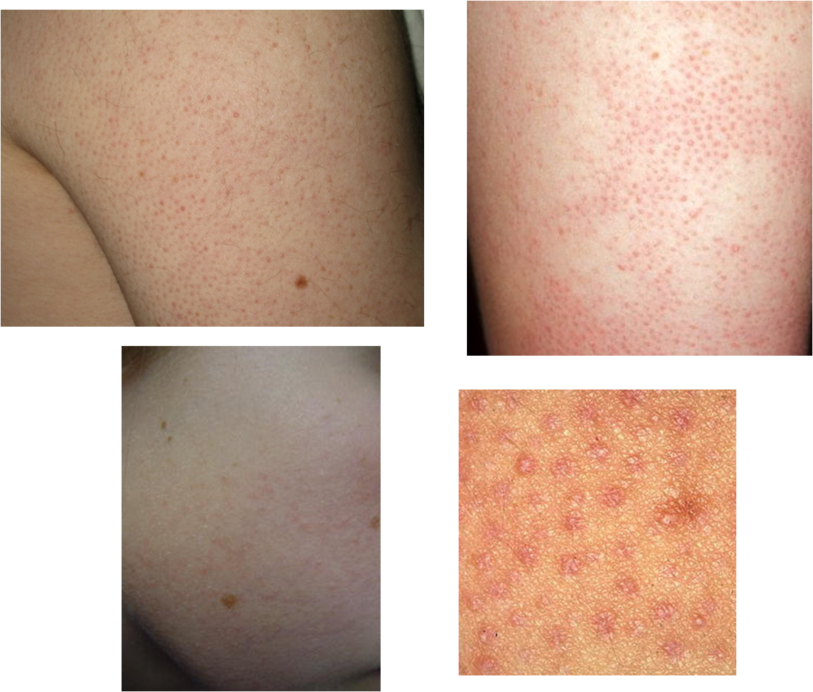 images Everything You Need to Know About KeratosisPilaris